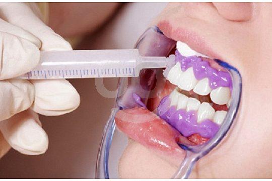Bleaching weisse Zähne